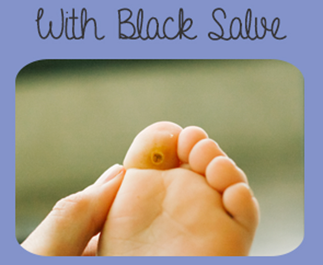 Plantar Wart with Black Salve Applied